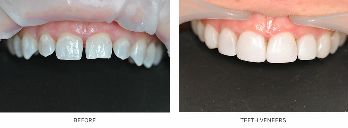 Full sets of veneers