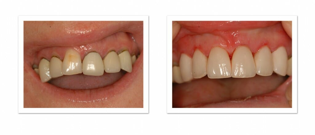 Porcelain Crowns from Winning Smiles Cosmetic Dentistry Team