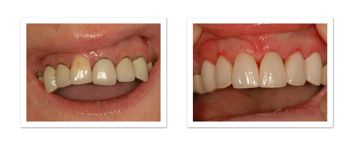 Porcelain Crowns are Quite simply the most beautiful and faithful ...