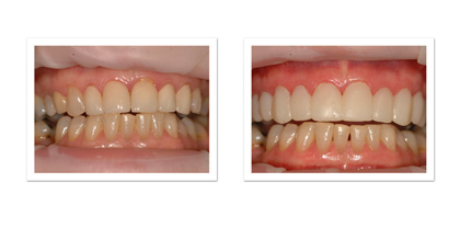 Veneers before photo with temporaries