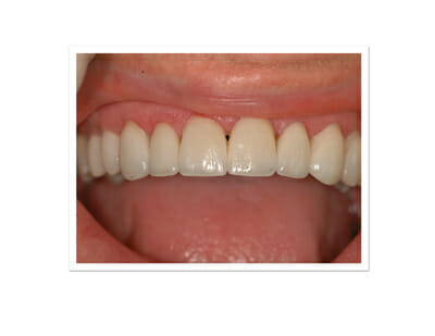 Fitted Teeth veneers