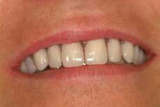 full-upper-implant-denture