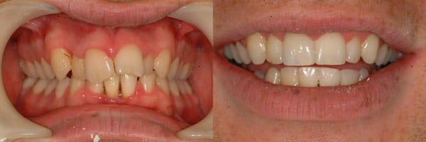 Before and after treatment with Inman Aligners, Example 1
