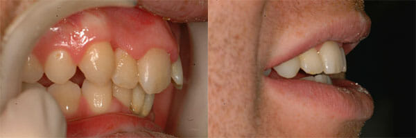 Before and after treatment with Inman Aligners, Example 2