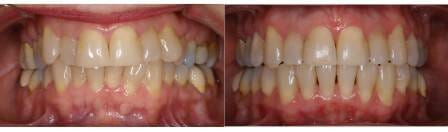 Before and after treatment with the Damon System