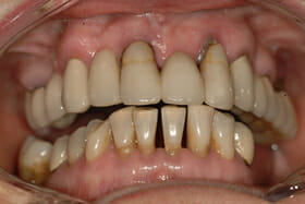 porcelain replacement teeth whole jaw