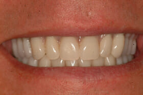 whole jaw replacement acrylic teeth