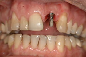 Picture of a front tooth Dental Implant