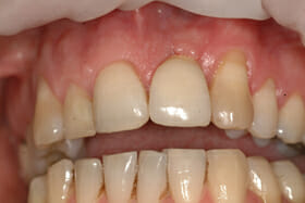 Picture of a front tooth Dental Implant temporary