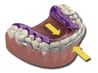 how the inman aligner works