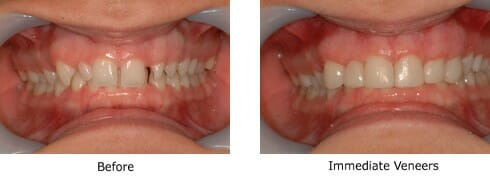 Immediate veneers before and after picture