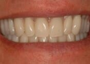 Acrylic implant dentures after (Custom)