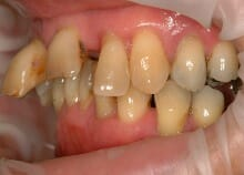 Full Upper Implant Bridge