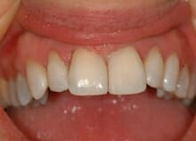 Immediate Veneers to Close Gap between upper front teeth