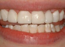 Immediate Veneers - Upper Front Teeth