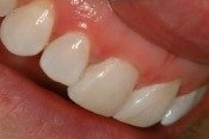 Immediate Veneers - Single Upper Incisor
