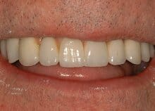 Full Upper Ceramic Implant Bridge