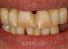 Upper and Lower Implant retained dentures