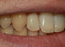 Straightening Teeth without Visible Braces after 2