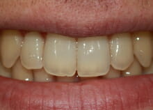 Straightening Teeth without Visible Braces after