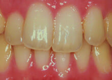 Straightening Teeth without Visible Braces