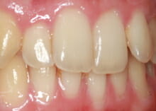 Straightening Teeth without Visible Braces before