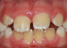 early orthodontics - teeth straightening for children in essex