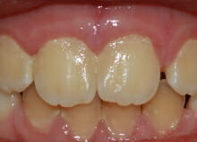 early orthodontics - teeth straightening for children in essex after