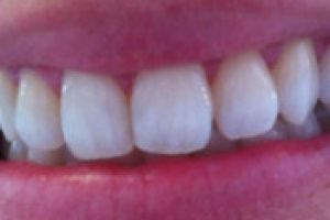 Cosmetic Whitening in 10 Days
