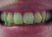 Cosmetic Teeth Whitening before