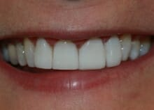 instant veneers before and after