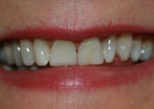 instant veneers before and after photos
