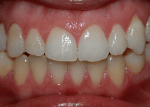 complex invisalign after photo