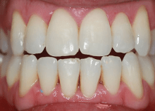 Invisalign Lite for Crowding