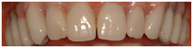 Acrylic Implant Dentures