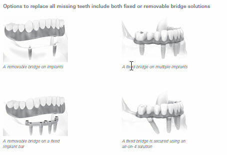 All on 4 Dental Implant Options