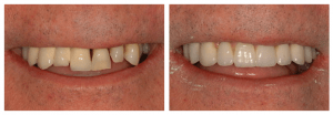 Porcelain Upper Implant Bridge