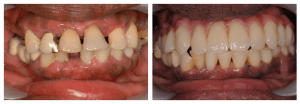 Immediate Implant before and after