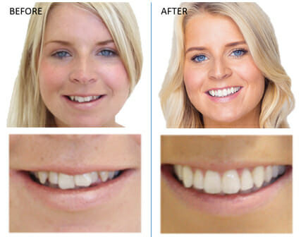 mikala-invisalign-before-and-after-reading