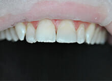 Immediate Veneers for Diastema Closure