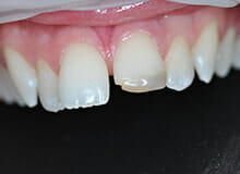 case-1-immediate-veneer-micro-invasive-before