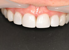 Immediate Veneers