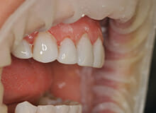 case-3-immediate-veneers-after-2