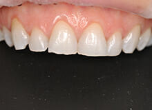 case-3-immediate-veneers-after-3