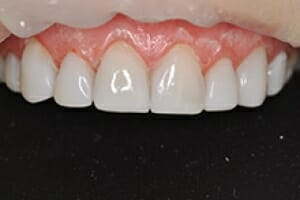 Beautiful Immediate Veneers