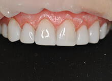 case-3-immediate-veneers-after