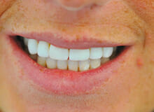 Immediate Veneers - Smile Enhancement