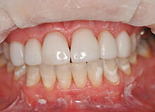 case-4-immediate-veneers-after