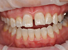 case-4-immediate-veneers-before