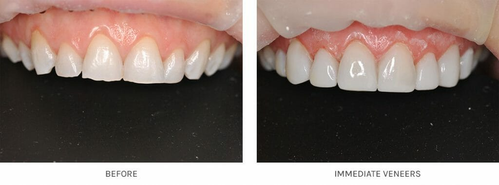 Instant Immediate Tooth Veneers with Composite Material